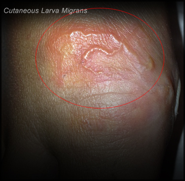 Cutaneous Larva Migrans Sa Pictures